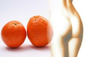 Bio-Oil for cellulite. How to reduce cellulite and stretchmarks on bums and thighs