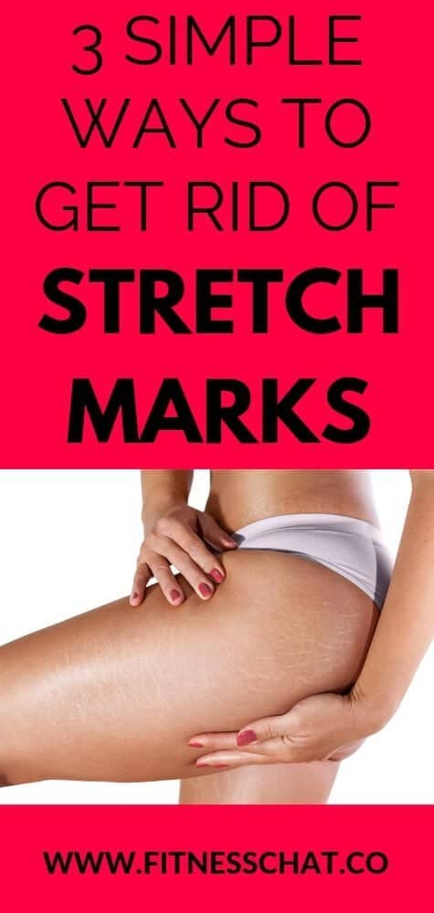 Beauty tips to get rid of stretch marks fast and home remedies for stretch marks