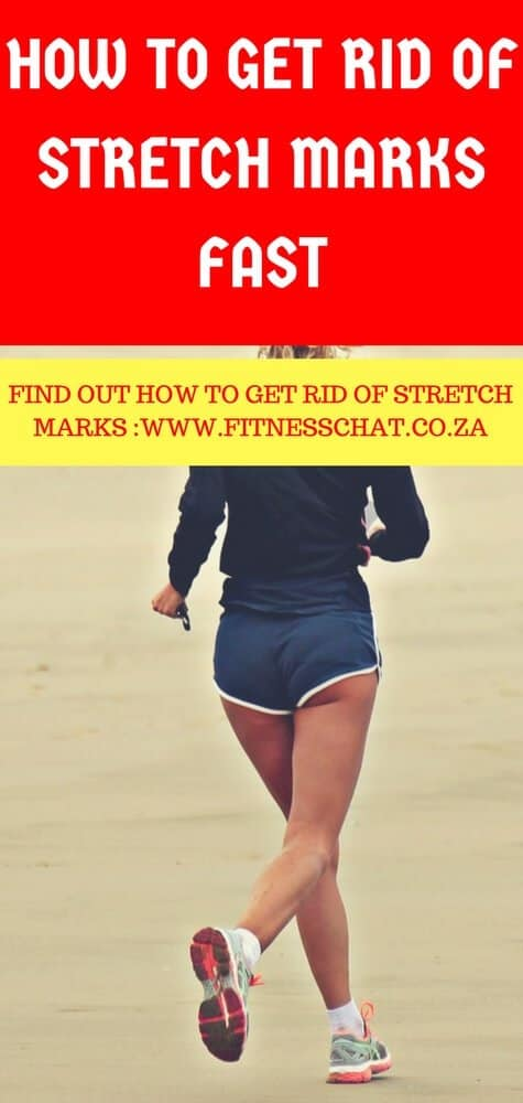 3 Best Ways To Get Rid Of Stretch Marks
