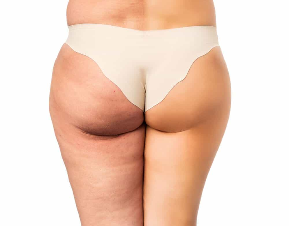 Use bio oil for cellulite to get rid of cellulite
