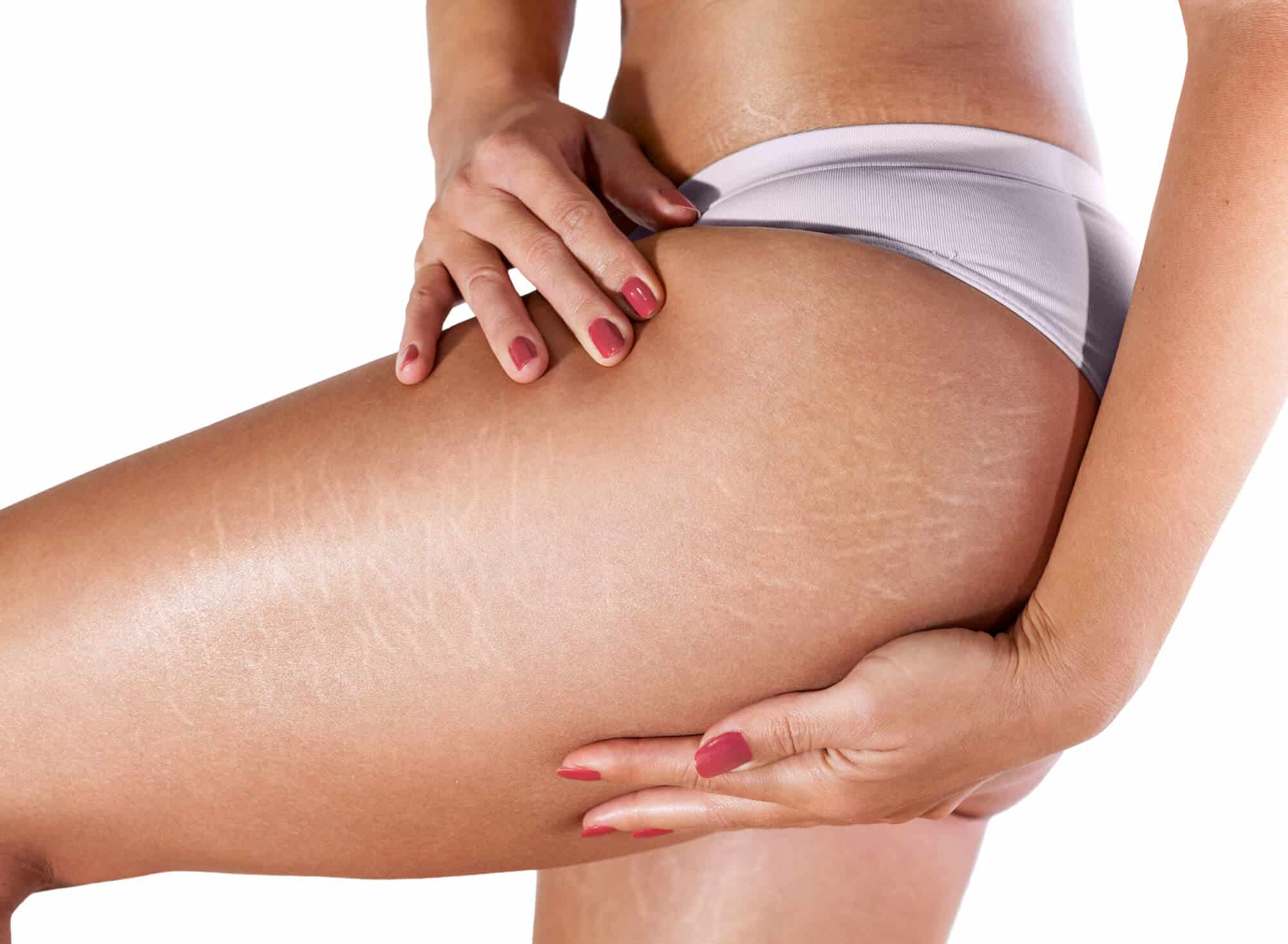 reduce the appearance of cellulite by dry skin brushing