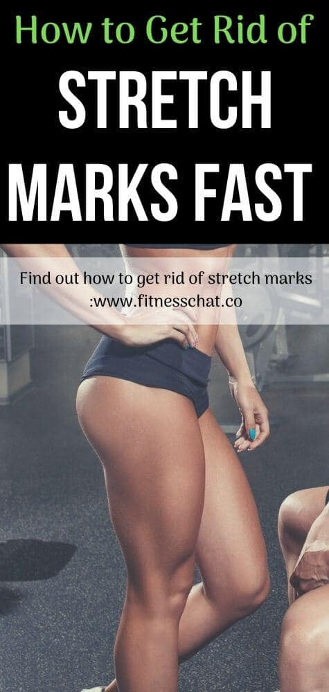 how to get rid of stretch marks and Best remedies for stretch marks removal,